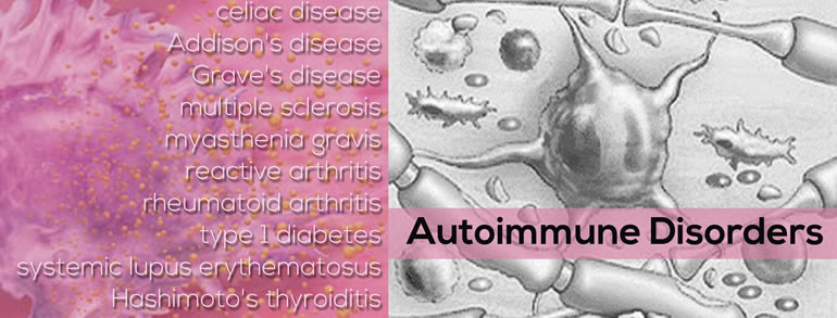 Q&A Autoimmune Disorders