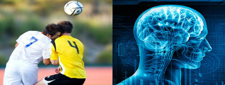 Concussion and Soccer/Football