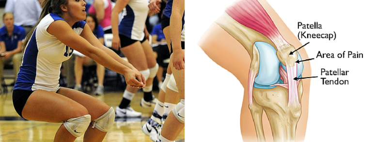 What You Need to Know About Patellar Tendinitis